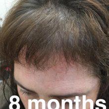 hair restoration after 8 months