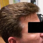 hair restoration male client