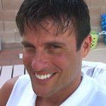 Hair Loss Restoration Las Vegas